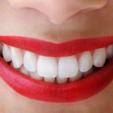 white teeth 225x225  Oil Pulling Method