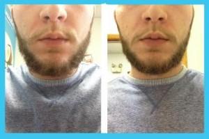 Beard 300x200  No-Shave November